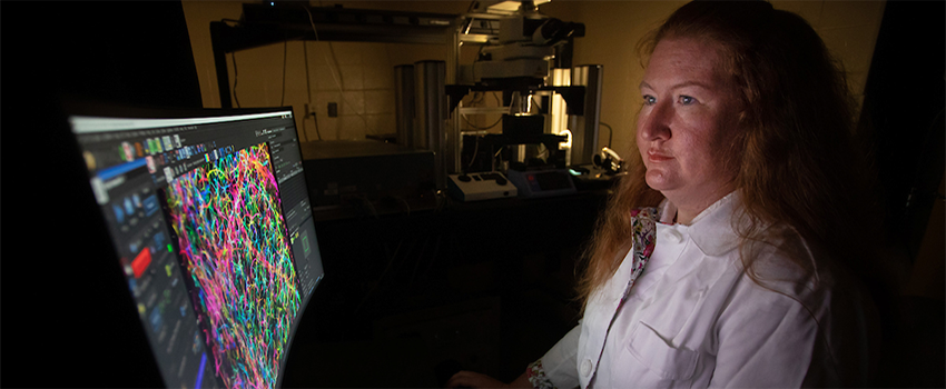 Amy R. Nelson, Ph.D., assistant professor of physiology and cell biology, is investigating if pericyte dysfunction may cause reduced blood flow in Alzheimer's disease.