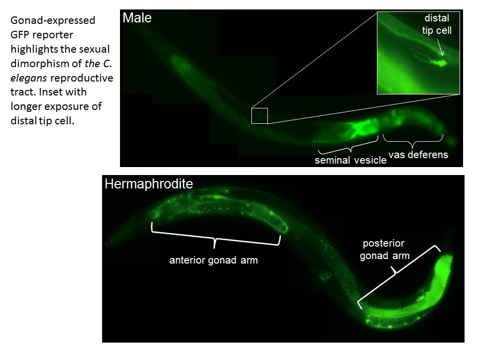 Gonad-expressed GFP reporter highlights the sexual dimorphism of the C. elegans reproductive tract. Inset with longer exposure of distal tip cell.